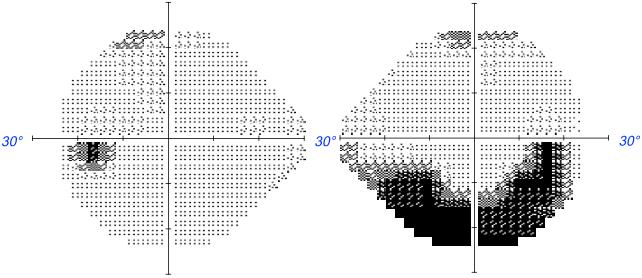 résultats examen champs visuels anormaux