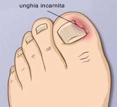 unghia2