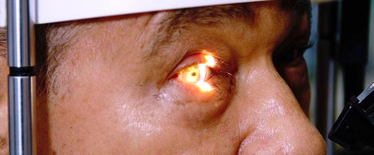¿Qué es el glaucoma? ¿Como detectarlo a tiempo?