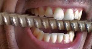 Zgrzytanie zębami przez sen - w nocy