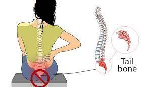 Ból kości ogonowej