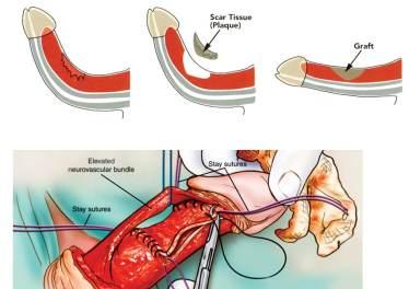 Operacja Choroby Peyroniego