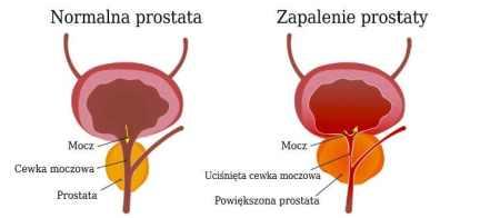 Wyleczyłem przewlekłe zapalenie prostaty