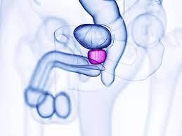 Masaż prostaty czyli dojenie gruczołu krokowego