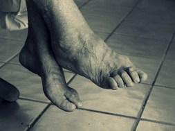 ostroga piętowa stopy leczenie