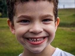 leczenie zębów ósemek