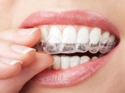 Skoryguj zęby z Orthocaps