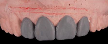 mockup-dental-mejorar-sonrisa-caso-clinico-2