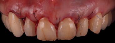 mockup-dental-mejorar-sonrisa-caso-clinico-5