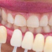 como-se-ponen-las-carillas-dentales (1) (1)