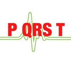 心電図のPQRST波?