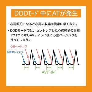 ペースメーカーのDDDモード中に心房頻拍が発生