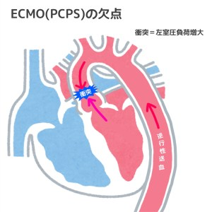 Impella,ECMO,違い