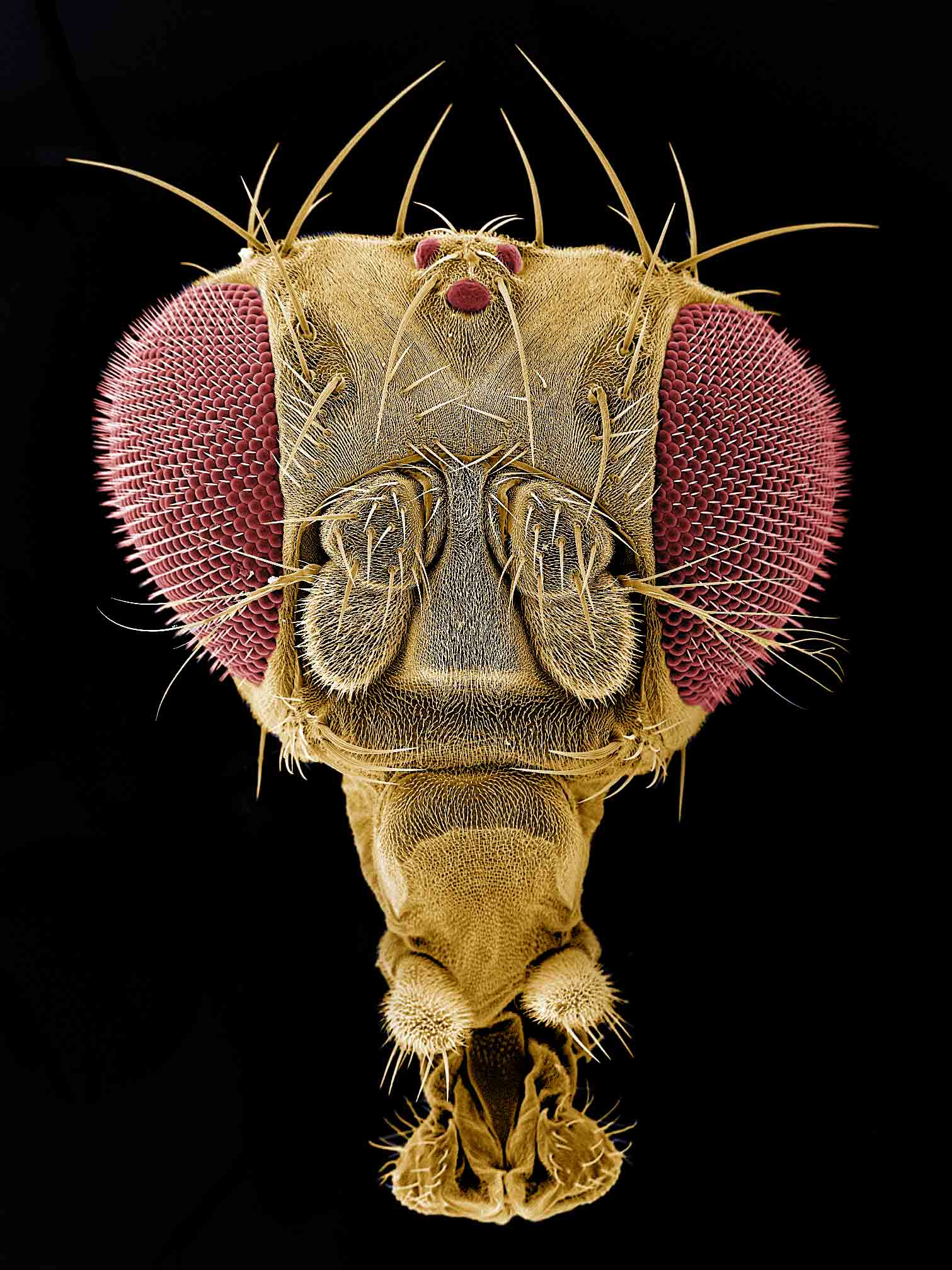 Fruit Flies Have Concussions Too