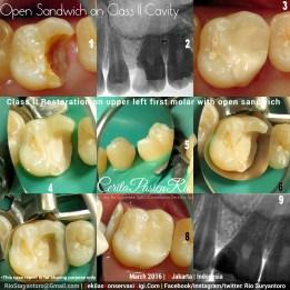 dokter gigi rio spesialis konservasi gigi jakarta gigi geraham PULP CAPPING pondok indah maret