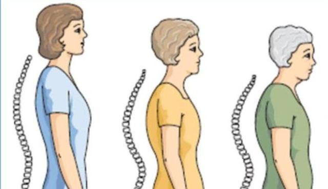 Osteoporosis Celíacos