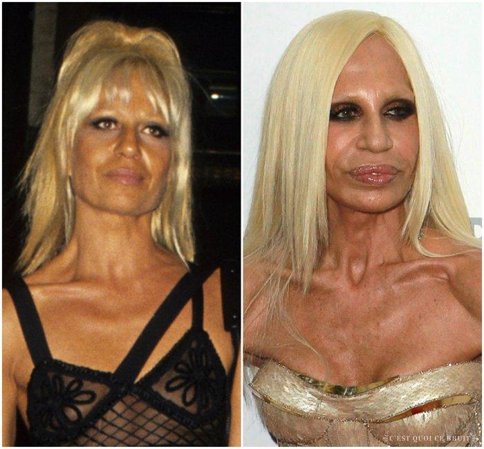 les ratés de la chirurgie esthétique Versace