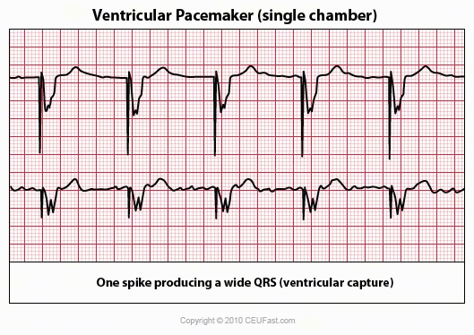 12 lead ekg placement diagram carbon dioxide oxygen cycle the gallery for --> cardiac monitor