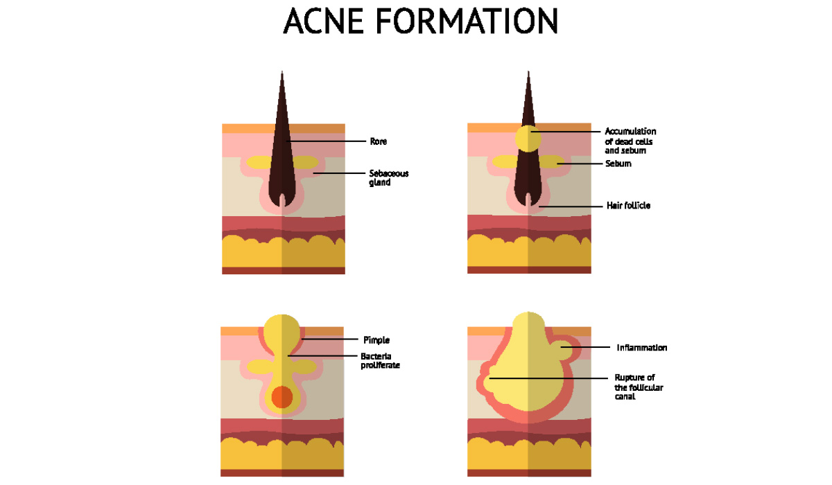 hight resolution of acne formation diagram