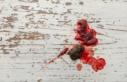 Bloody Mucus Stool - Stools Item