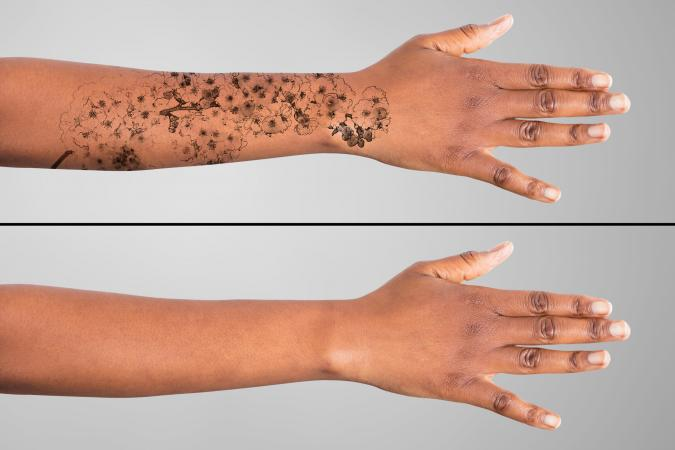 Tattoo Ink Removal Cream Price In India