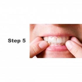 自家用!藍光牙齒美白療程 - she.com