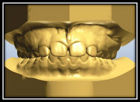 3D Study Models & Plaster Study Models