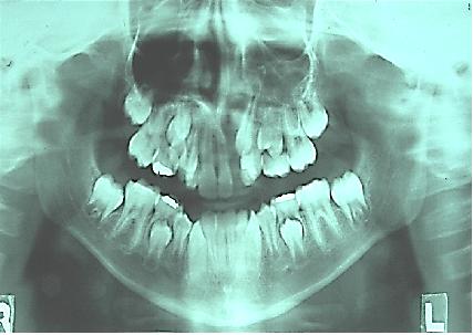 Skeletal Class 3