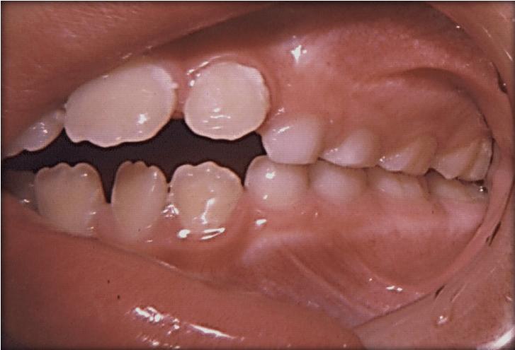 Skeletal Open Bite