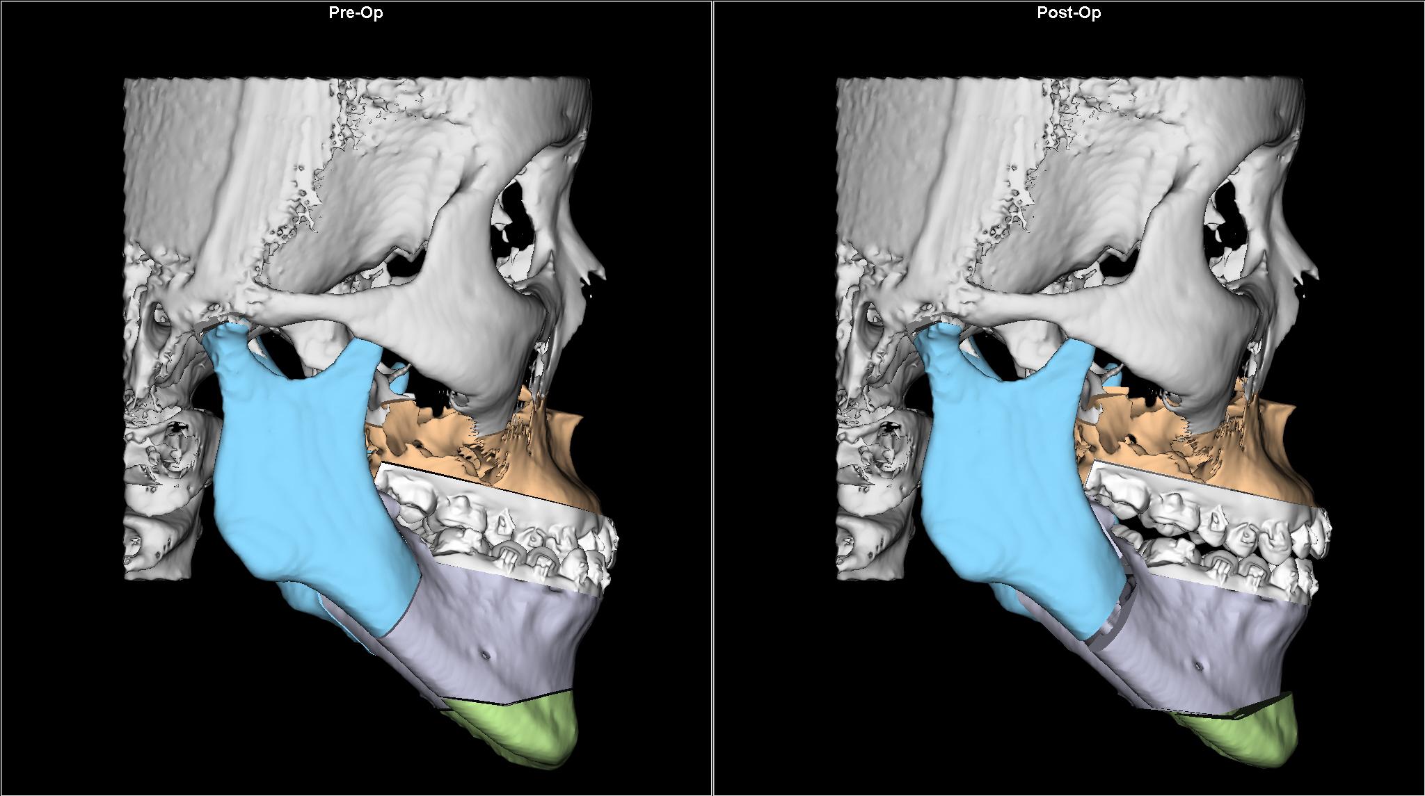 圖解正顎手術 – 正顎 削骨手術 姚全豐醫師