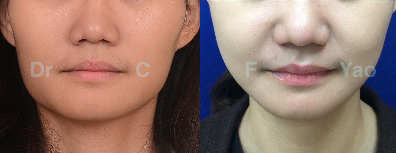 削骨手術案例 – 正顎 削骨手術 姚全豐醫師