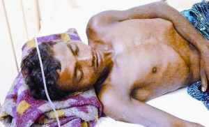 BHIMA MADKAM – VILLAGER INJURED IN POLICE FIRING AND ADMITTED IN HOSPITAL