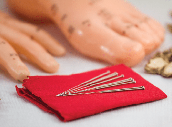 Acupuncture needles laying on a cloth with a foot and hand in the background