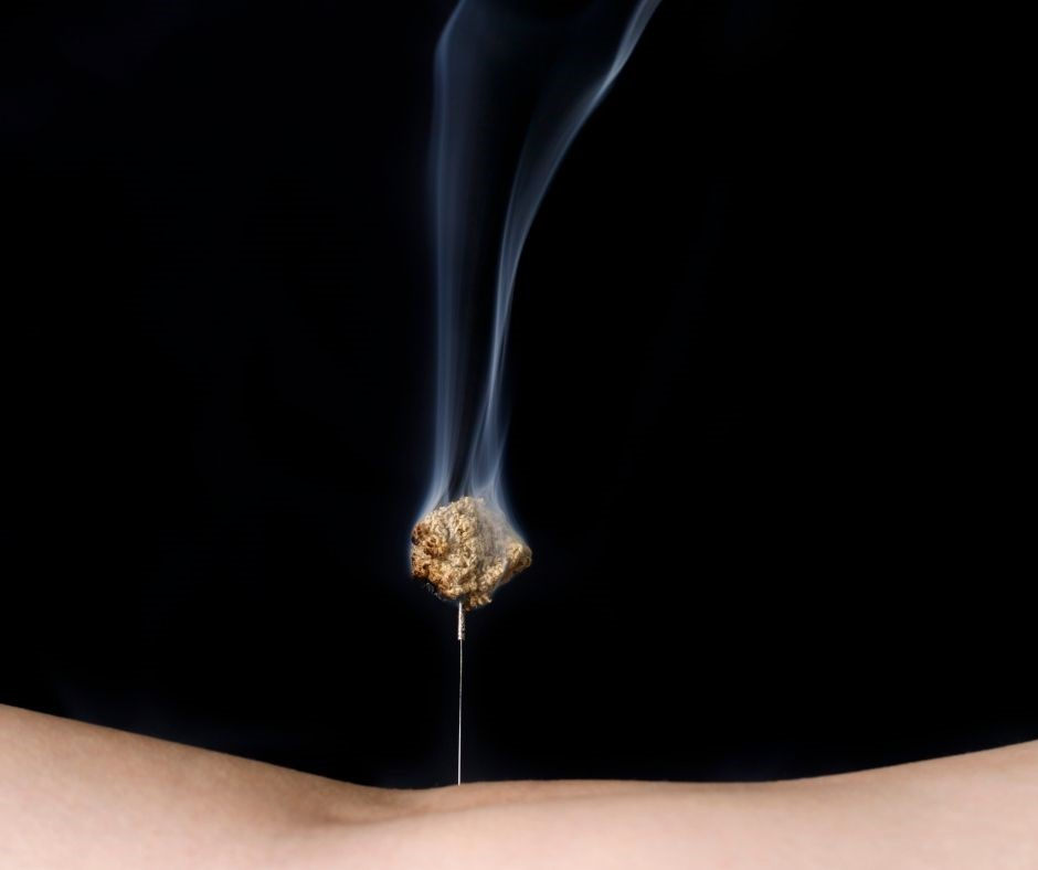 A ball of Moxi burnign on top of an acupunture needle on a person's body.