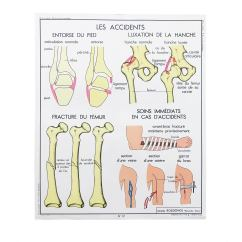 Vintage Diagram V Shaped Valley French Educational Double Sided Accidents Bones Joints School Poster