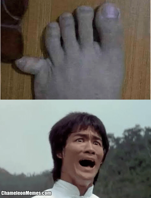 Pinky Toe Meme : pinky, Pinky, Couch, Fails