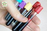 Lấy máu xét nghiệm bệnh: Bạn có bao giờ nghĩ mình bị lấy thừa máu?