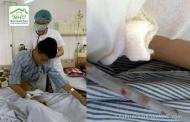 Bác sĩ giật mình khi thấy sán lá phổi bò lúc nhúc trong phổi nam thanh niên