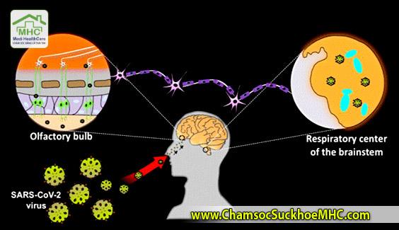 SARS-CoV-2 virus brain damage virus covid19 tan cong nao  Bệnh nhân COVID-19 bị choáng: Do virus tấn công lên não rồi tự nhân bản SARS CoV 2 virus brain damage virus covid19 tan cong nao MHC