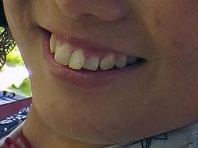 [箍牙記] 上箍前 | yoU aRe HerE,至今「長頸」就是他  同拔牙,至今「長頸」就是他  同拔牙, bIRdiZagOoN