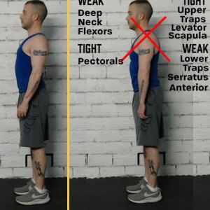 how to fix rounded shoulders