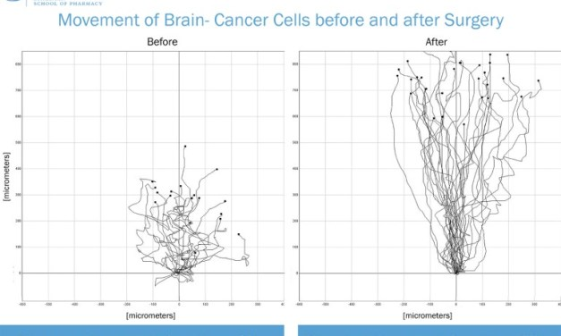 UNC Researchers: Removing a Brain Tumor Makes Cancer More Aggressive