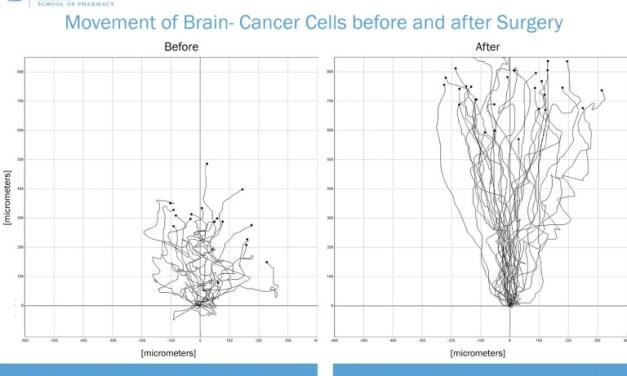 UNC Researchers: Removing a Brain Tumor Makes Cancer More Aggressive