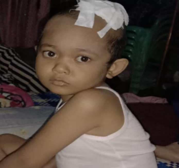 Bocah 6 Tahun Penderita Kanker Ganas di Aceh Timur Butuh Bantuan Dermawan