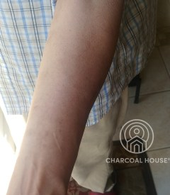 6152020 - MD Uses Activated Charcoal For A Nasty Rash