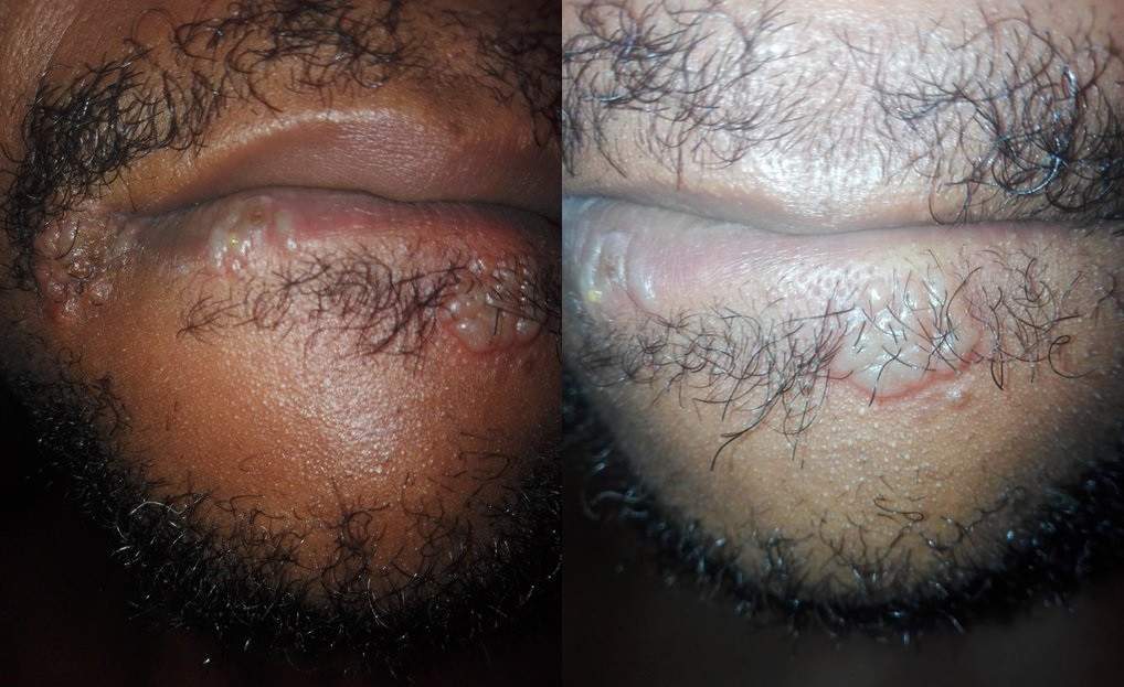After performing Oral Sex on a woman, he got infected – (See Disgusting Photos)