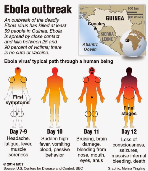 Ebola Outbreak Symptoms