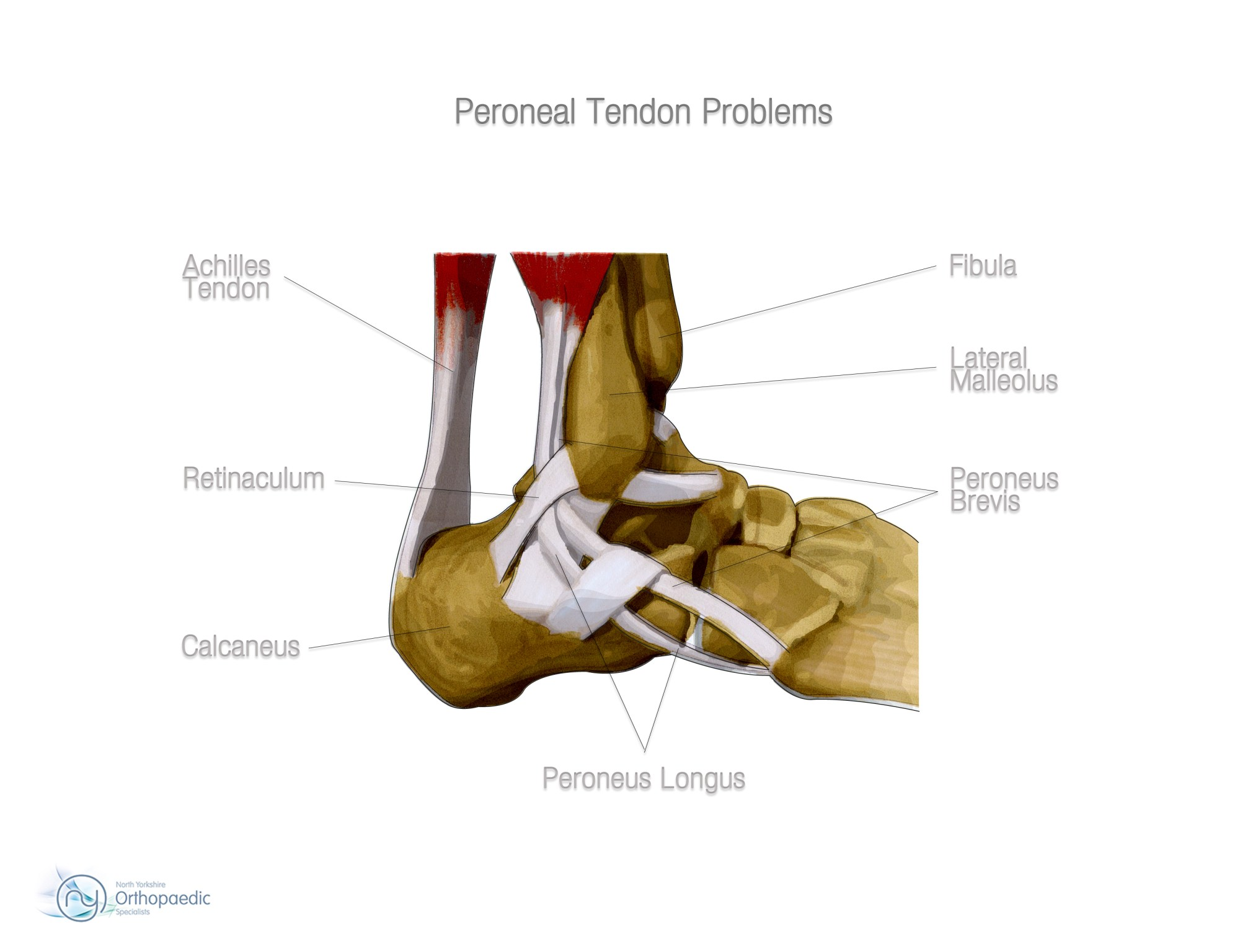 hight resolution of peroneal tendon tear