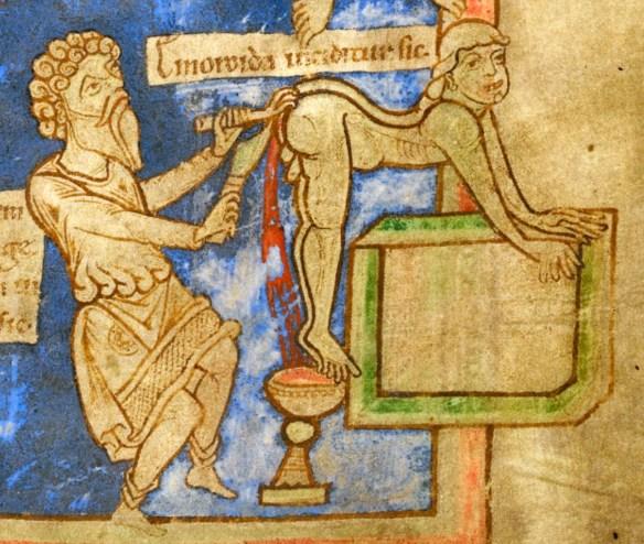 Wycinanie hemoroidów. Rycina ze średniowiecznej książki. Źródło: British Library