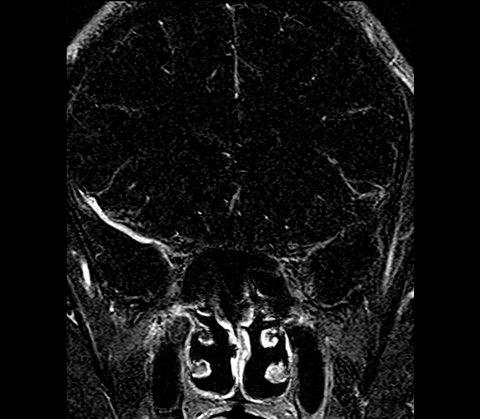 Podpis pod tym zdjęciem mówi o nielegalnych eksperymentach na człowieku. Źródło: http://commons.wikimedia.org/wiki/File:Mind-Control.jpg